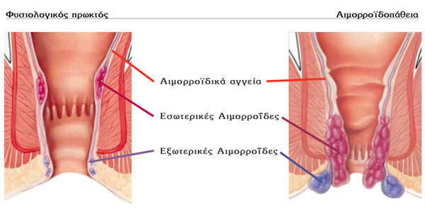 αιμορροϊδες