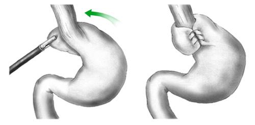 Χειρουργική αποκατάσταση Διαφραγματοκήλης & Γαστρο-οισοφαγικής παλινδρόμησης.